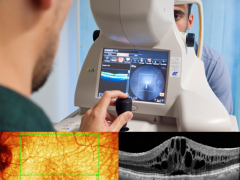 Foundation Degree in Optical Coherence Tomography